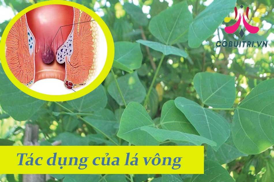 Tác dụng của lá vông trong điều trị bệnh trĩ