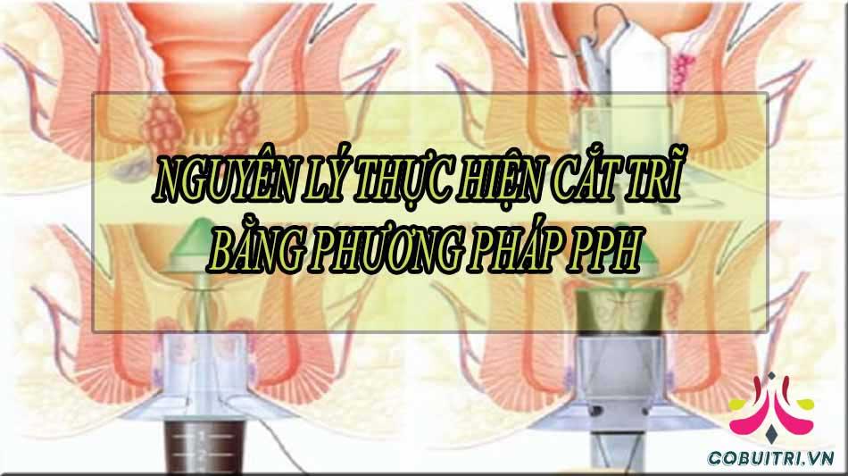 Nguyên lý thực hiện cắt trĩ bằng phương pháp PPH