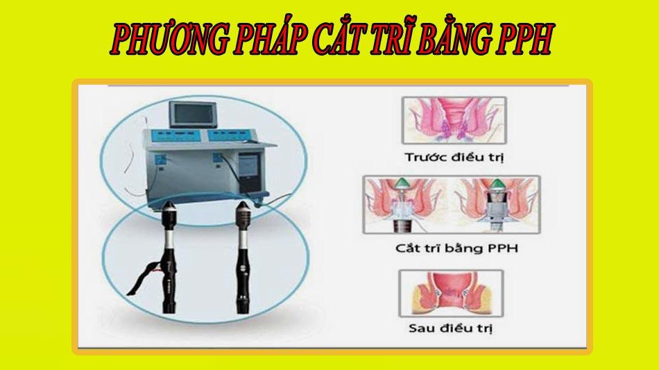 Phương pháp cắt trĩ bằng PPH