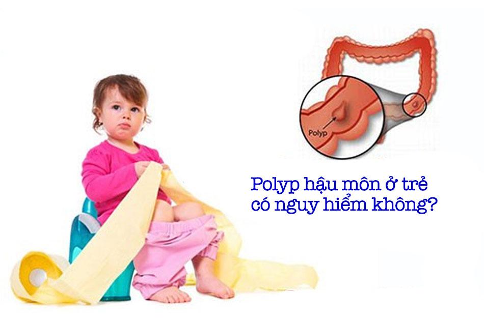Polyp hậu môn ở trẻ là là gì? Có nguy hiểm không?